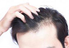 clinics for hair transplant